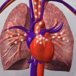 Tumori del cuore
