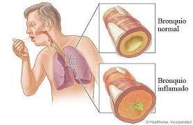 La bronchite è una malattia respiratoria molto diffusa, può essere acuta o cronica