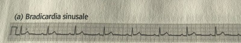 """Quindi, bradicardia significa, """"cuore lento"""". Il termine """"sinusale"""" fa riferimento alla sede d'origine dell'aritmia,"""