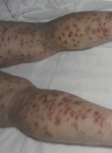 La varicella è una malattia infettiva altamente contagiosa