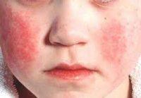 Eritema infettivo: quinta malattia